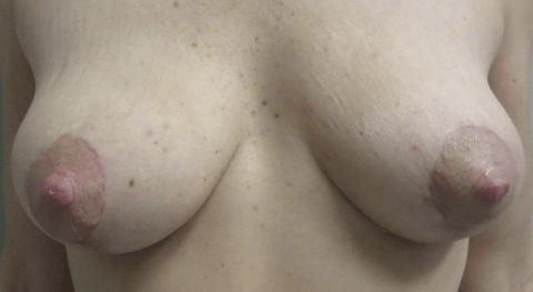 Banners_and_Alerts_and_CLC_Cosmetic_Surgery___Breast_Lift_Before_and_After