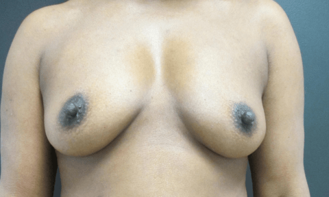SG 14970 FT Breast before_edited