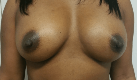 SG 14970 FT to Breast after_edited