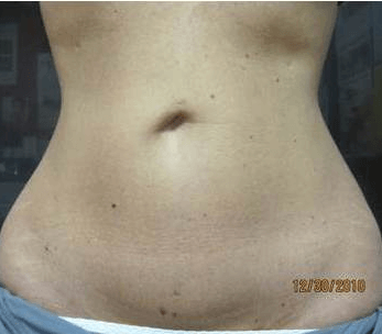 tickle lipo abd after