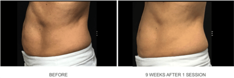 Coolsculpting 9 week results1