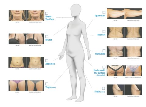 Before and After of Coolsculpting