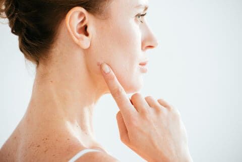 woman pointing to mole