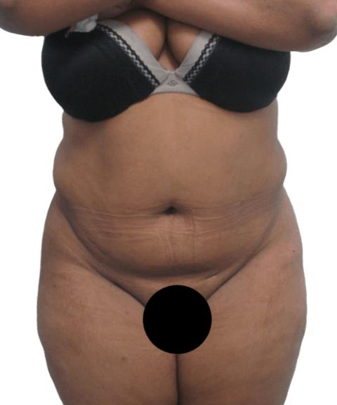 Belly 10