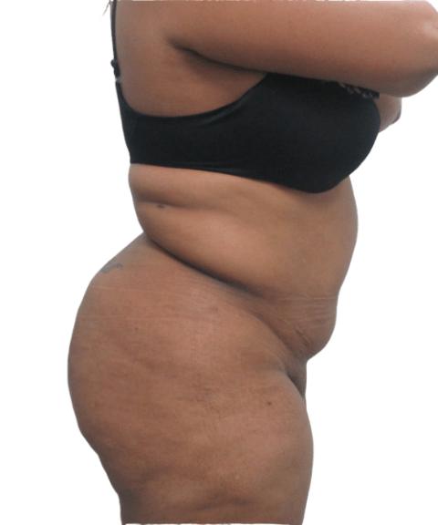 Belly 11