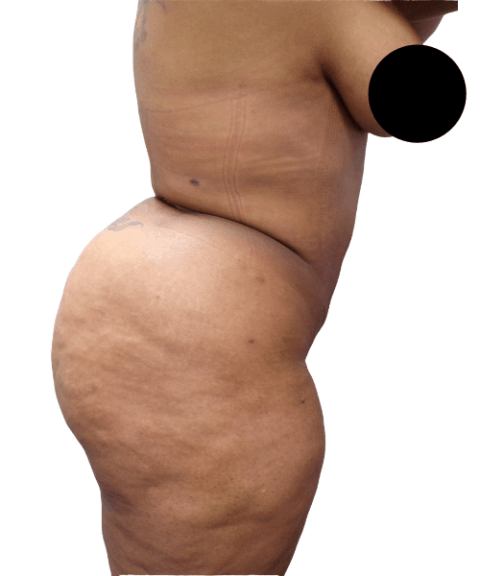 Belly 12
