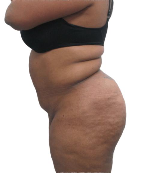 Belly 13