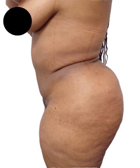 Belly 14