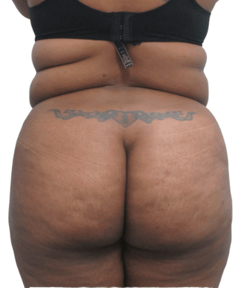 Belly 15