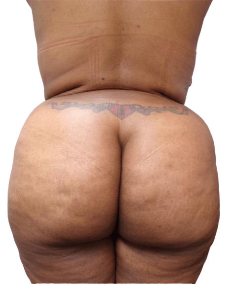 Belly 16