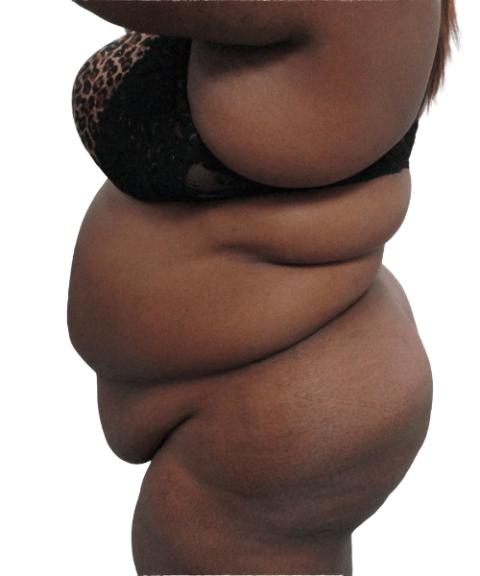 Belly 3