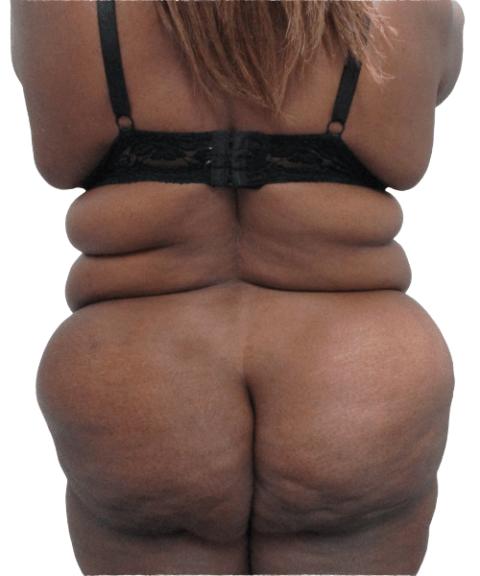 Belly 5