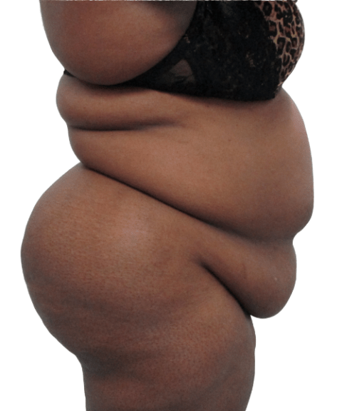 Belly 7