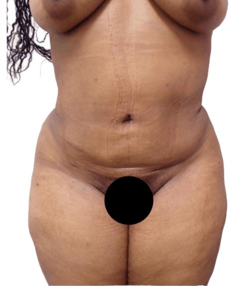 Belly 9