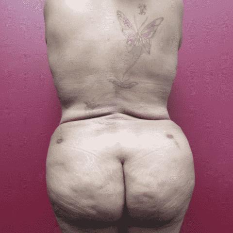 Body 10