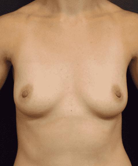 BreastFTB